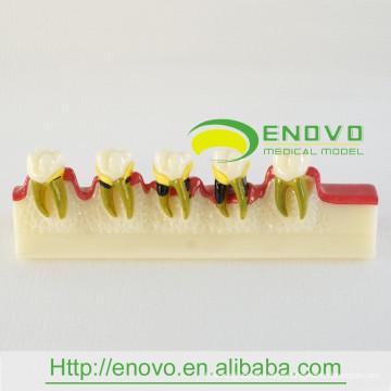EN-M8 Modelo de desenvolvimento de doença dentária / modelo de doença dentária
