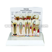 Teeth Model With Description Plate
