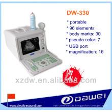 meilleure machine portative d'ultrason pour des personnes et le prix de sonde d'ultrason d'usb (DW-330)