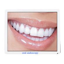 endoscópio de clareamento de dentes câmera intraoral dental computador