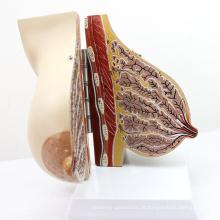 ANATOMY22 (12460) Modelo de Seção de Seios Femininos em Lactantes Modelo de Seios, 2 Partes, Modelos de Anatomia> Modelos Femininos