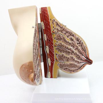 ANATOMY22 (12460) Modèle de section de la poitrine chez la femme dans le modèle du sein en lactation, 2 parties, modèles d'anatomie> Modèles féminins