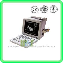 Scanner à ultrasons de prix MSLPU01