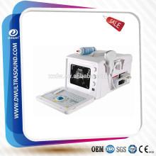 Ultraschall-System Dawei & tragbare Ultraschall Bauch Preis