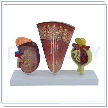 PNT-0564-1 Promotional Nephron and Renal Corpuscle model Customized