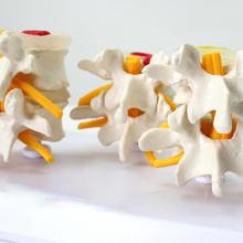 VERTEBRA12 (12396) Modelos de vértebras lombares em tamanho natural em três estágios de degeneração