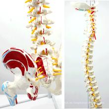 SPINE05-1 (12378) Medizinische Anatomie Human Flexible Wirbelsäule mit Femurköpfen und bemalten Muskeln, lebensgroße Wirbelsäulenmodelle