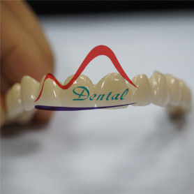 Co-Cr PFM Long Bridge with Translucenct Incisor