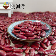 2017 select New Crop Britain Dard Red Kidney Beans for food