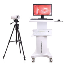 Medis Digital Portable Video Colposcope untuk Ginekologi