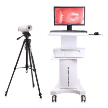 Colposcopio video digitale medico portatile per ginecologia