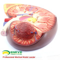 KIDNEY02 (12431) Rim De Plástico De Tamanho Grande Com Suporte 3 Tempo Aumentar A Anatomia Médica Do Tamanho Da Vida