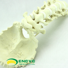 SIMULACIÓN AL POR MAYOR HUESO 12322 Anatomía Médica Hueso Occipital Cervical Artificial, Ortopedia Practica Simulación Hueso