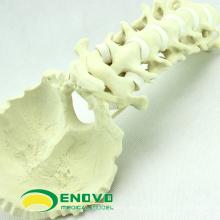 Osso de simulação por atacado 12322 Medical anatomia artificial osso occipital cervical, osso de simulação de prática de ortopedia