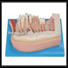 Modelo de dientes de niños amplificados por la ISO, mandíbula inferior de un niño de 12 años HR / B10002