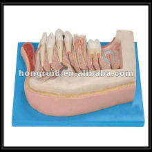 Модель усиленной детской зубы ISO, нижняя челюсть 12-летнего ребенка HR / B10002
