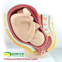 VENDER 12448 Pelvis de embarazo de primera calidad - Infancia de 40 meses, modelos de anatomía Pelvis de embarazo con feto maduro