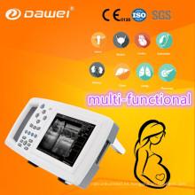 DW-600 ultrasonido portátil de la máquina precio y oveja embarazo ultrasonido escáner