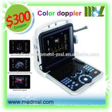 Porzellan tragbare Ultraschall Maschine Preis, MSLCU28, tragbare, Farbe Ultraschall!