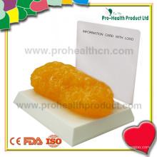 1 lbs TPR Anatomical Fat Replica Model