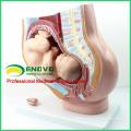 ANATOMY11 (12449) Section médiane de la section féminine du bassin avec un bébé de 9 mois