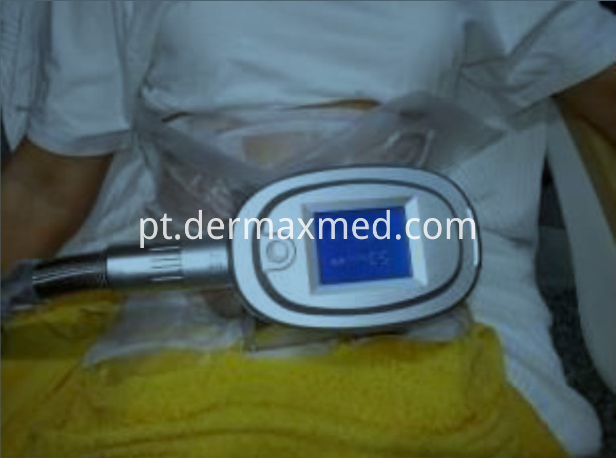 Cryolipolysis Antifreeze Membrane