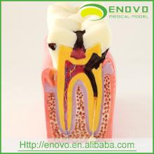 Modelo de dientes patológicos dentales EN-M2 de comparaciones de caries 6 veces