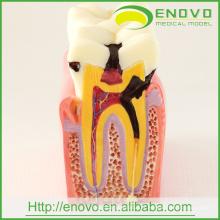 Modèle de dents pathologiques dentaires EN-M2 de 6Ttimes Caries Comparation