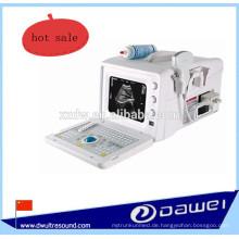 tragbarer medizinischer Ultraschallgerät und billigster Ultraschallscanner