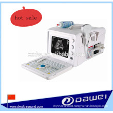 portable medical ultrasound machine & cheapest ultrasound scanner