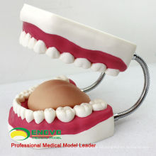 DENTAL03 (12562) Modelo de cepillado dental gigante de China Medical Anatomical Models
