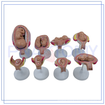 PNT-0600new design The birth process of full-term fetuses model for study