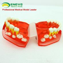 DENTAL16 (12596) Modelo de diente de desarrollo dental de 3 a 6 años de edad