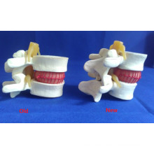 High Quality Foam Human Vertebra Medical Teaching Model