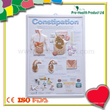 Constipation Patient Embossed Plastic Medical Chart