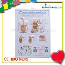 Пластическая медицинская карта пациента с запорной пластикой