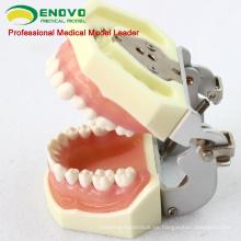DENTAL27 (12609) Tratamiento de enfermedades periodontales Modelos de mandíbula de entrenamiento