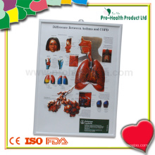 Difference Between Asthma And COPD 3D Anatomical Chart Wholesale