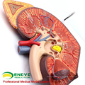 VENDER 12430 Agrandar Modelo médico Órgano humano Organe Glándula suprarrenal y riñón