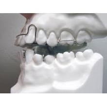 Dental Twin Block Appliance