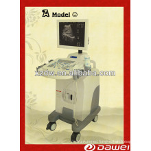 B type Ultrasound Scanner &Full Digital Trolley Ultrasound