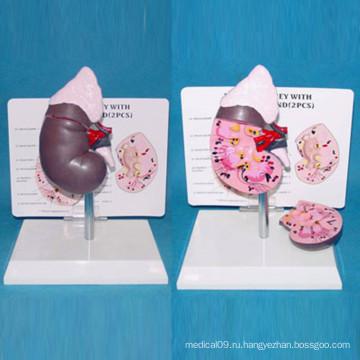 Медицинская анатомическая модель для обучения в области почек (R110104)
