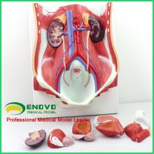 UROLOGY06 (12426) Anatomie médicale double système urinaire humain in situ, vessie mâle et femelle interchangeable