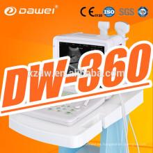 DW360 12''LED pantalla equipo de diagnóstico médico portátil y escáner portátil de sonoline para la venta