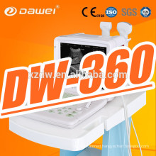 DW360 12''LED screen portable medical diagnostic equipment & portable sonoline scanner for sale