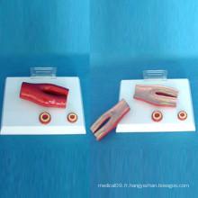 Modèle anatome médical vasculaire pathologique humain pour l'enseignement (R120111)
