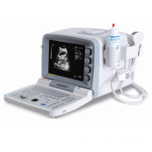 Full Digital B Mode Portable Ultrasound Machine