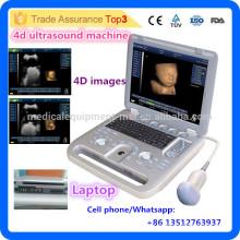 Ultrasonido popular! MSLCU18i Los últimos dispositivos médicos baratos del ultrasonido del ordenador portátil 4D / precio de la máquina del ultrasonido 4d