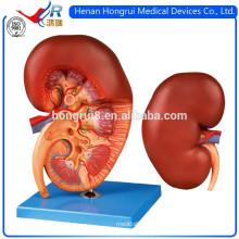 Modelo avanzado de riñón médico de ISO