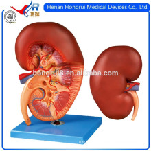 ISO Advanced Medical Kidney Model